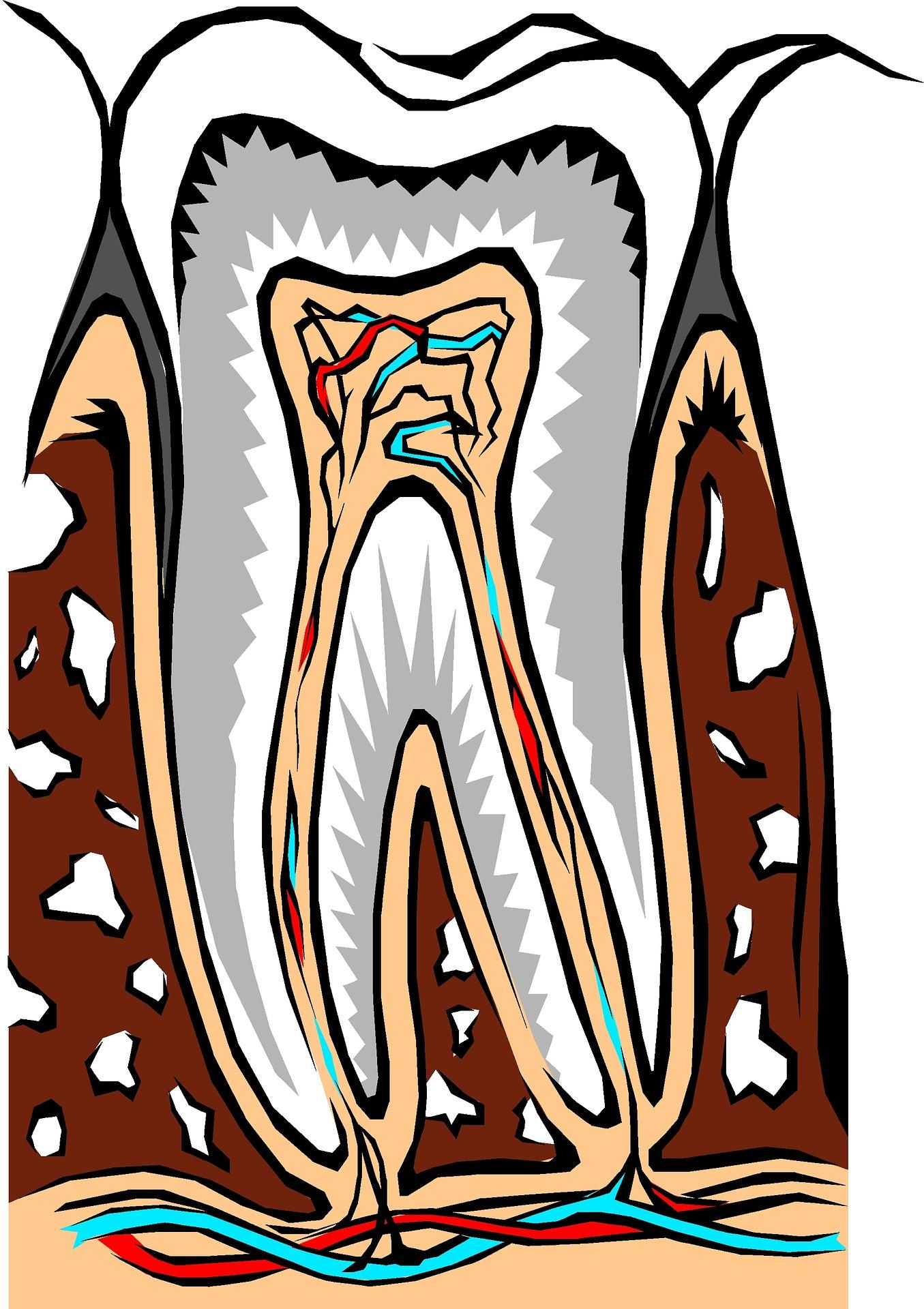 Dlaczego moje zęby się wciąż psują