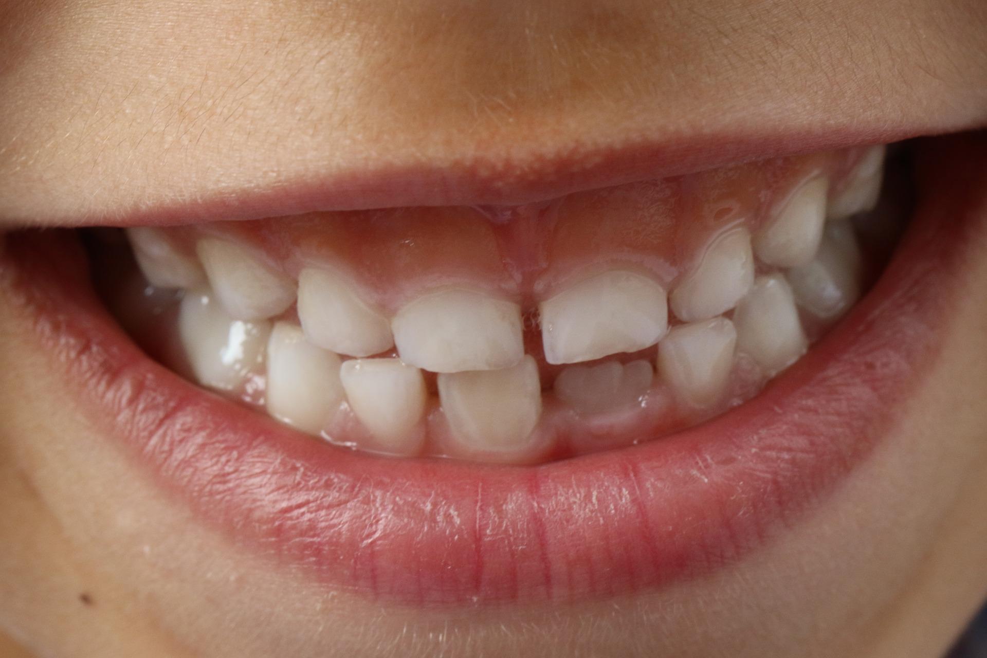 ząb stały ortodonta aparat dentysta diastema mammelony