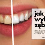Jak wybielić zęby? Wszystko co chcecie wiedzieć o wybielaniu a baliście się zapytać.
